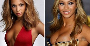 Beyonce-Before & After Images- Boob Job
