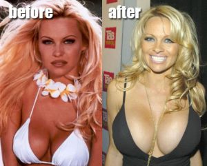 Pamela Anderson-Before & After Images- Boob Job