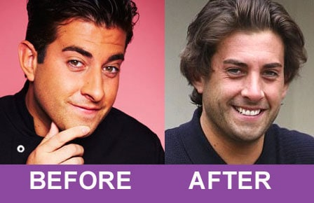 TOWIE's James 'Arg' Argent shows off new nose after rhinoplasty