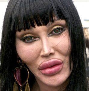pete-burns-celebrity-plastic-surgery1